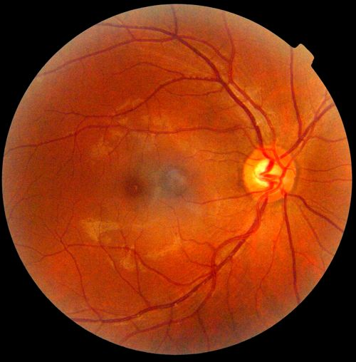 Retinal Scan - Retinography